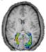 brainslice.jpg